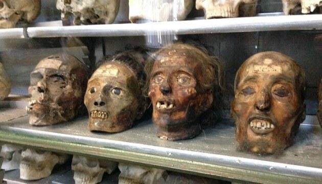 Le Musée d'Anatomie (ou des horreurs) de Montpellier