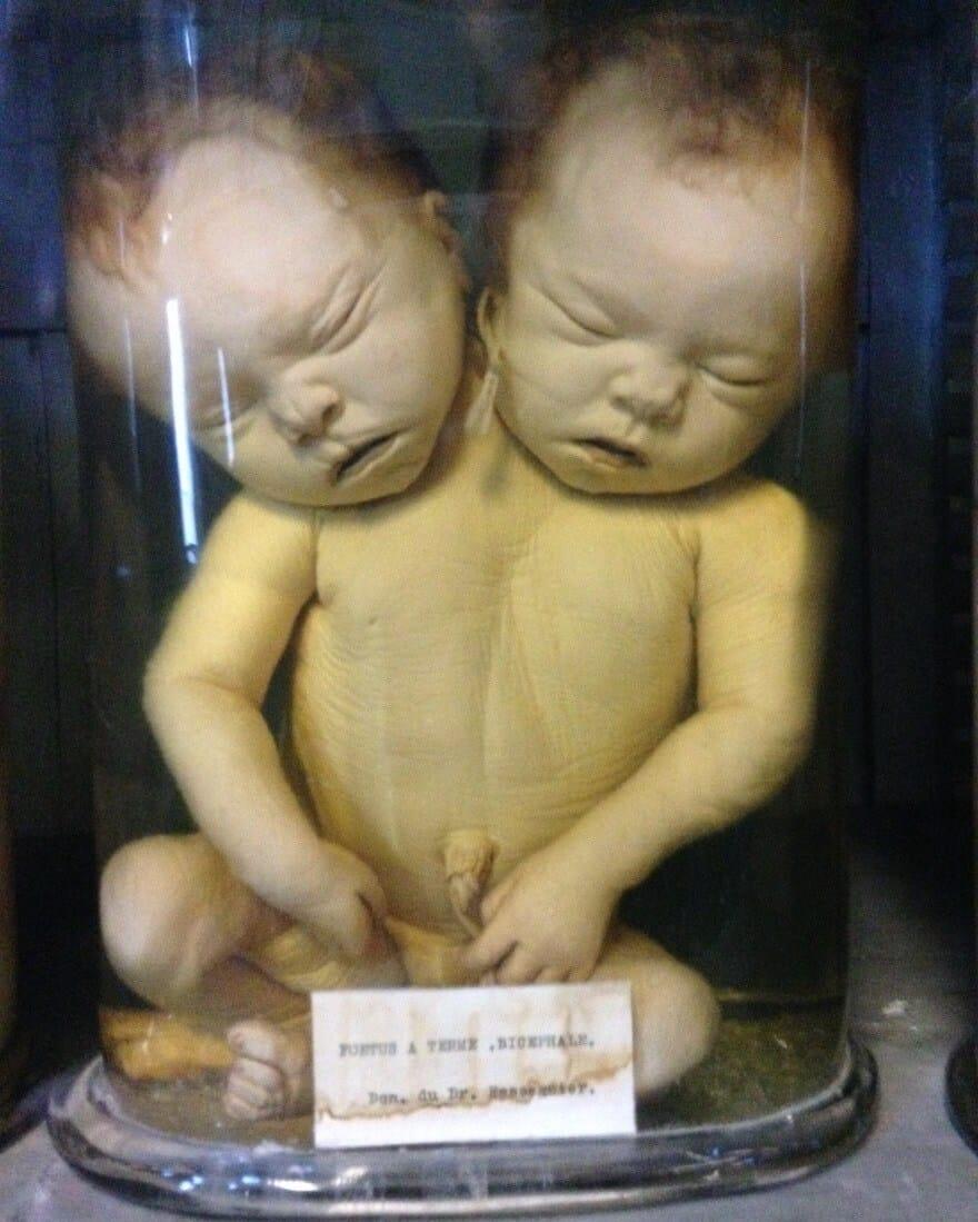 Foetus malformé, double-tête, Musée d'Anatomie, Montpellier