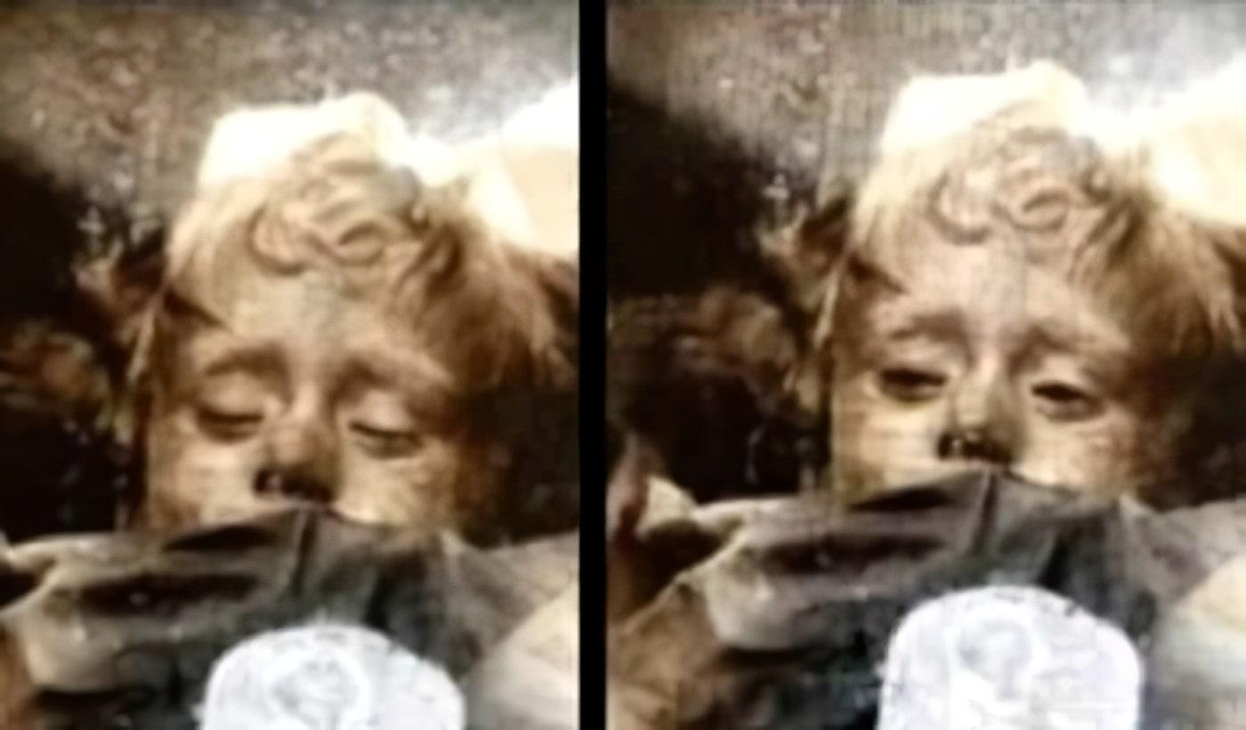 Rosalia Lombardo, yeux ouverts, momie, Sicile