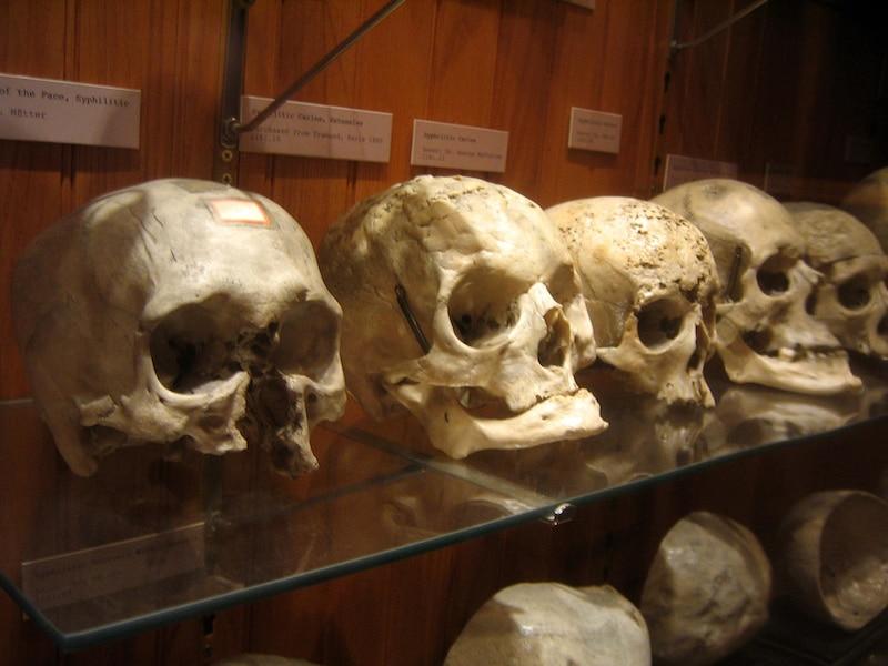 Musée Insolite, Musée de la Medecine