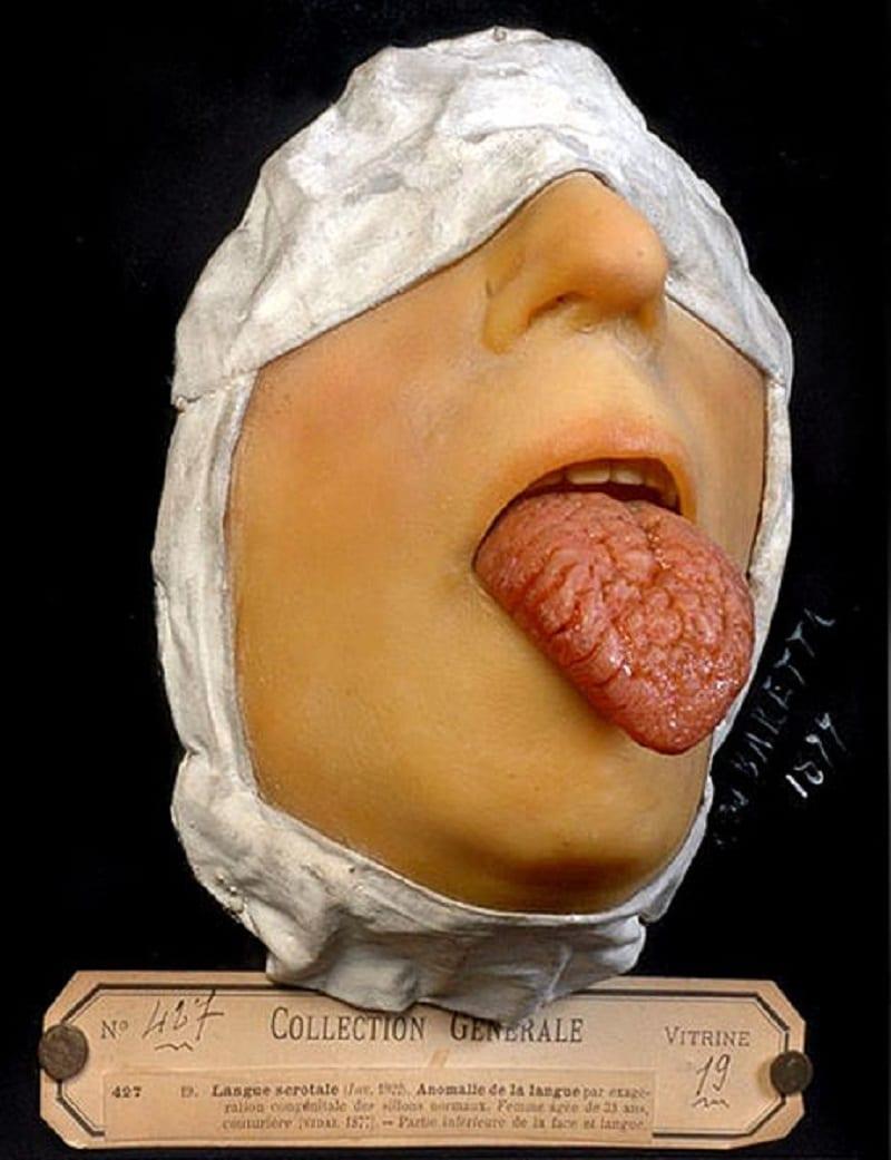 Musée insolite: musée maladie de la peau Paris